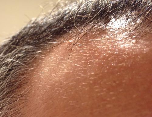 育毛サプリメントを飲んで髪の毛が生えてきた